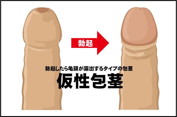 仮性包茎の症状